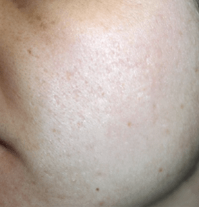 after pore reduction treatment