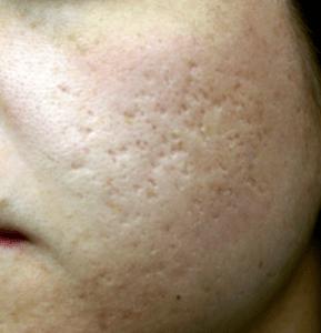 Skin pores on face