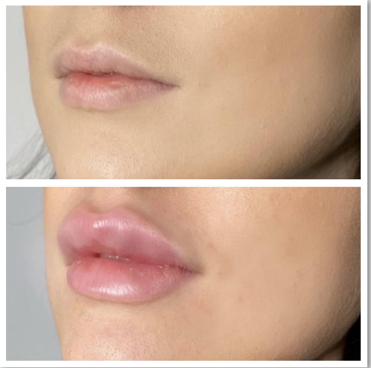 comparison of lips